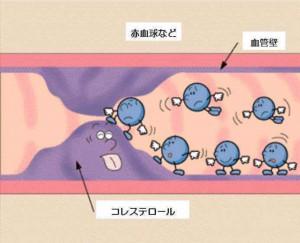 高コレステロール血症状ー8