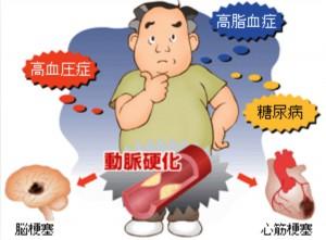 -4高コレステロール血症