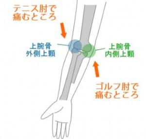 1-テニス肘